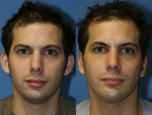patient-2213-otoplasty-before-after