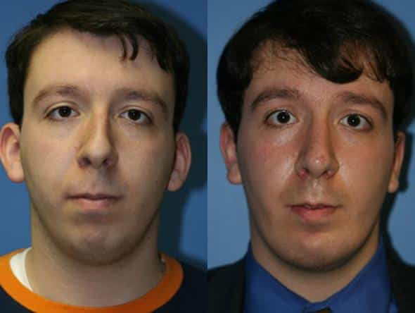patient-2220-otoplasty-before-after