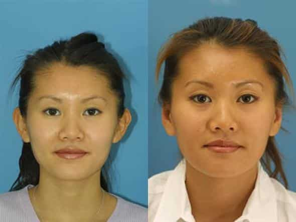 patient-2235-otoplasty-before-after