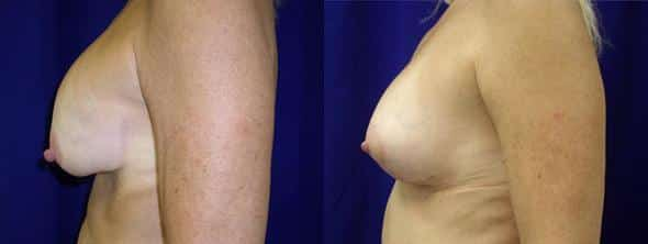patient-2238-revision-mastopexy-before-after