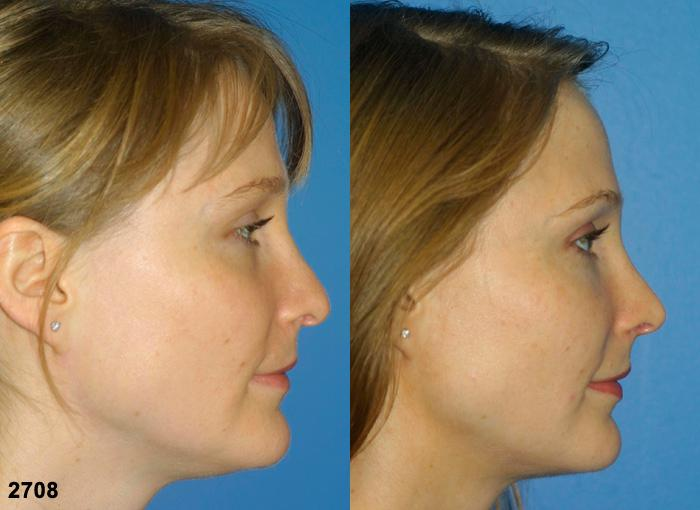 patient-2244-revision-rhinoplasty-before-after-1