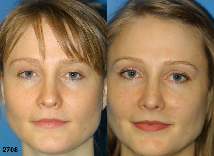 patient-2244-revision-rhinoplasty-before-after