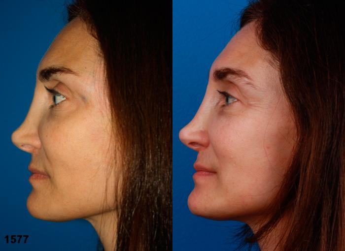 patient-2249-revision-rhinoplasty-before-after-1