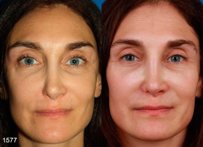 patient-2249-revision-rhinoplasty-before-after