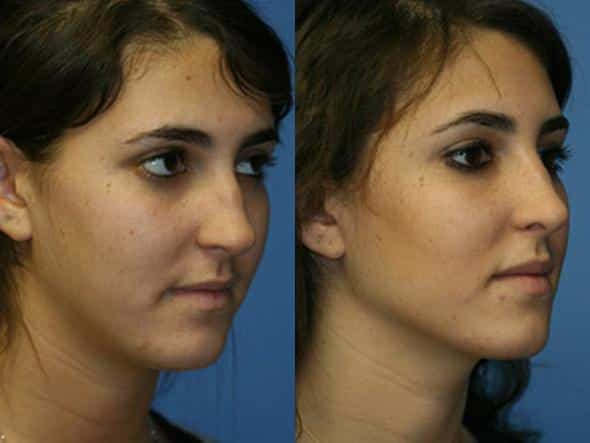 patient-2254-revision-rhinoplasty-before-after-1