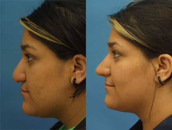 patient-2259-revision-rhinoplasty-before-after-1