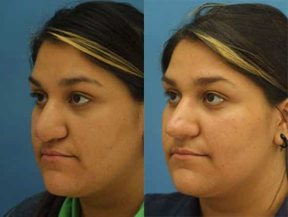 patient-2259-revision-rhinoplasty-before-after