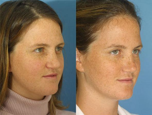 patient-2264-revision-rhinoplasty-before-after-1
