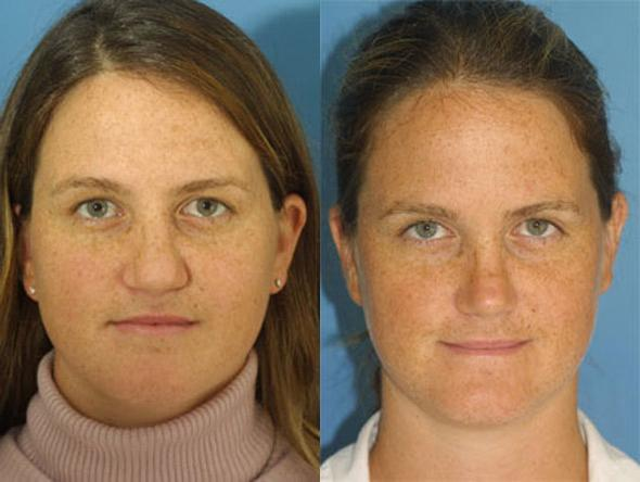 patient-2264-revision-rhinoplasty-before-after