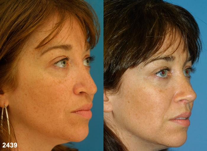 patient-2269-revision-rhinoplasty-before-after-1