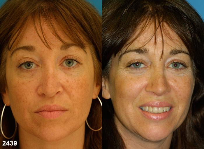 patient-2269-revision-rhinoplasty-before-after