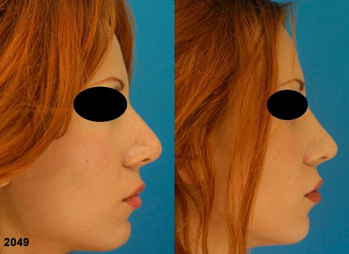 patient-2277-revision-rhinoplasty-before-after-1