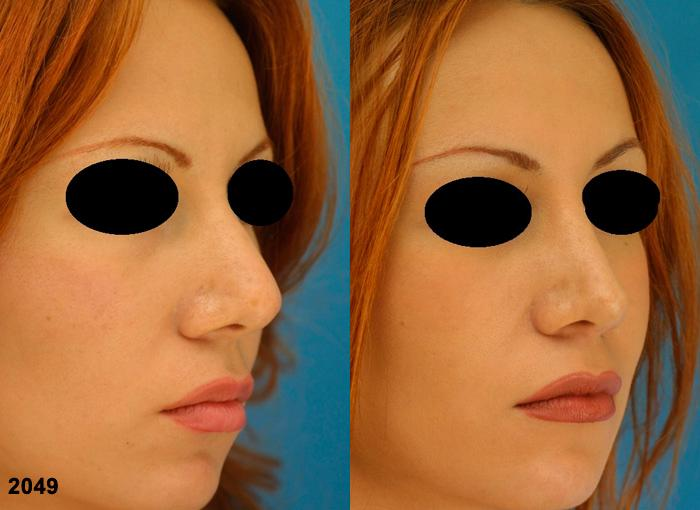 patient-2277-revision-rhinoplasty-before-after