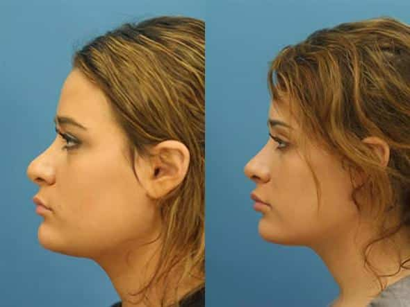 patient-2286-revision-rhinoplasty-before-after