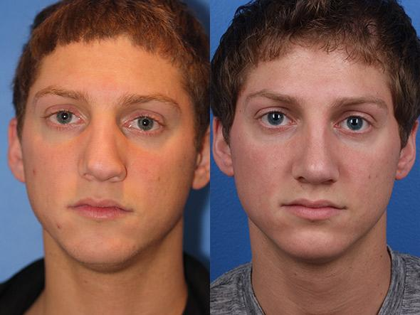 patient-2289-revision-rhinoplasty-before-after