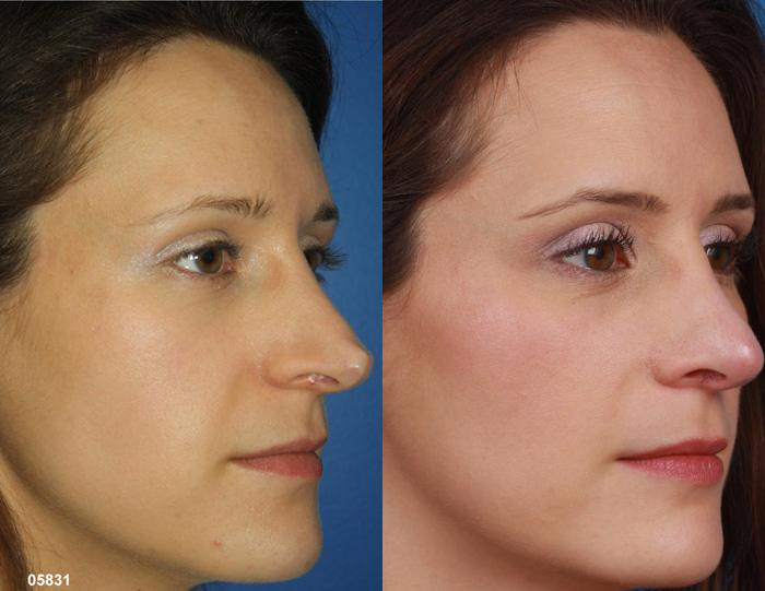 patient-2292-rhinoplasty-before-after-1