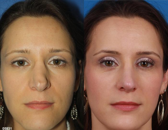 patient-2292-rhinoplasty-before-after