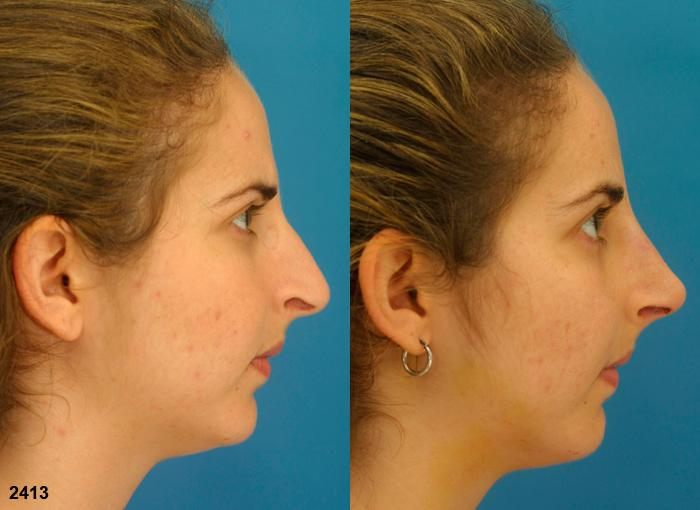 patient-2305-rhinoplasty-before-after-1