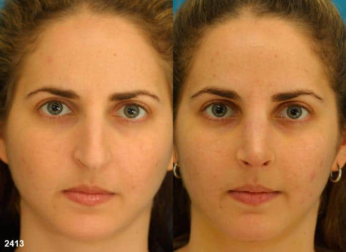 patient-2305-rhinoplasty-before-after