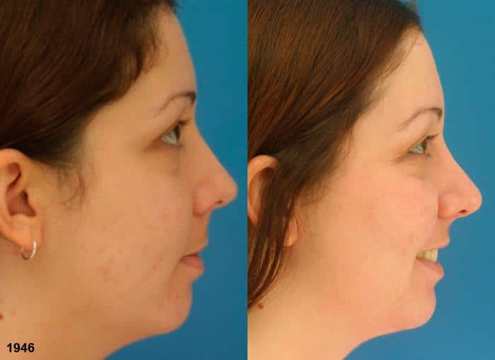 patient-2312-rhinoplasty-before-after-1
