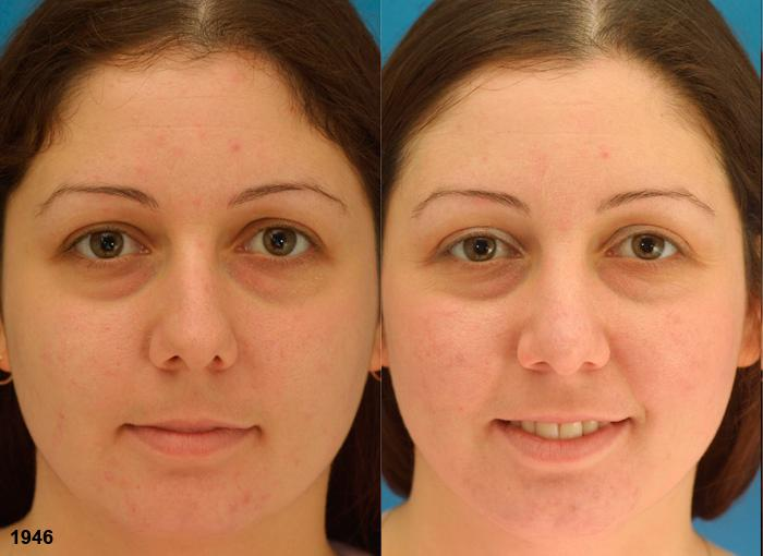 patient-2312-rhinoplasty-before-after