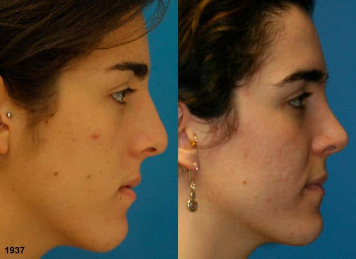 patient-2319-rhinoplasty-before-after-1