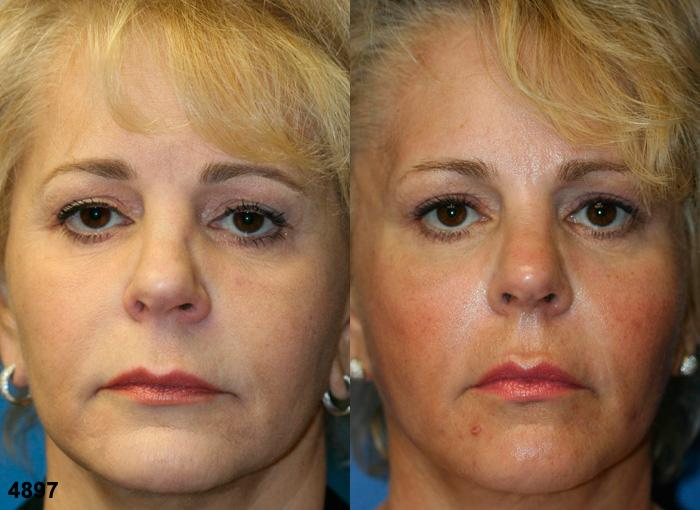 patient-2326-rhinoplasty-before-after
