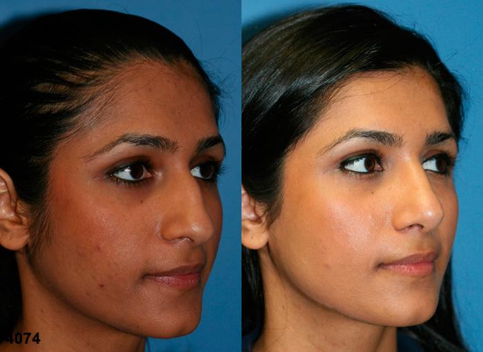 patient-2333-rhinoplasty-before-after-1