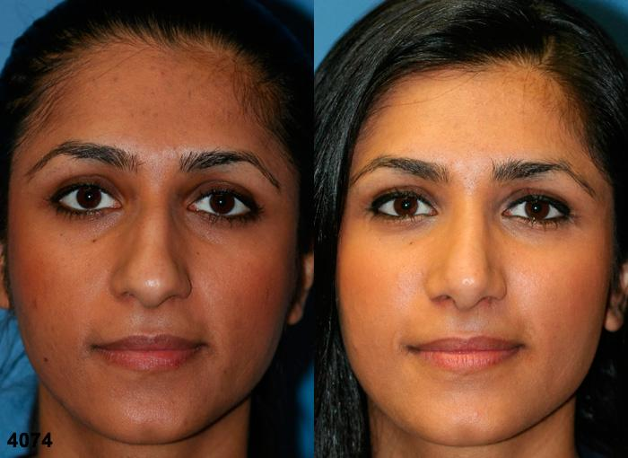 patient-2333-rhinoplasty-before-after