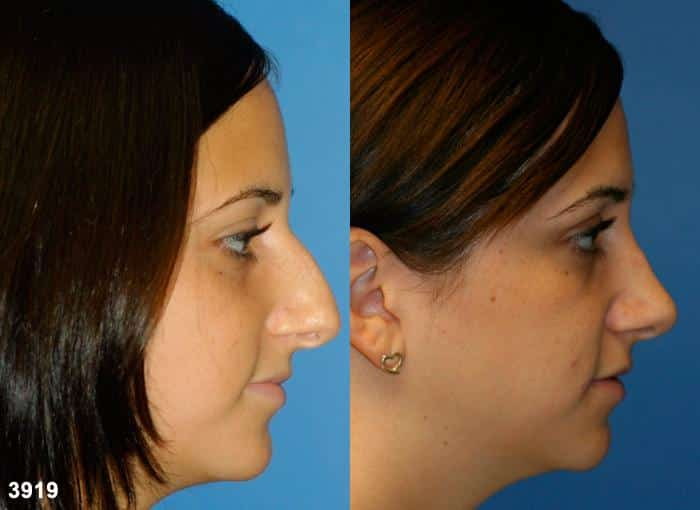 patient-2340-rhinoplasty-before-after
