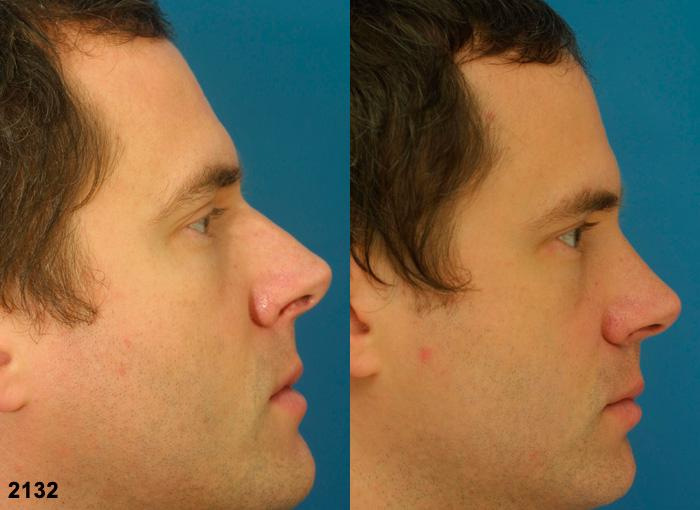 patient-2343-rhinoplasty-before-after-1