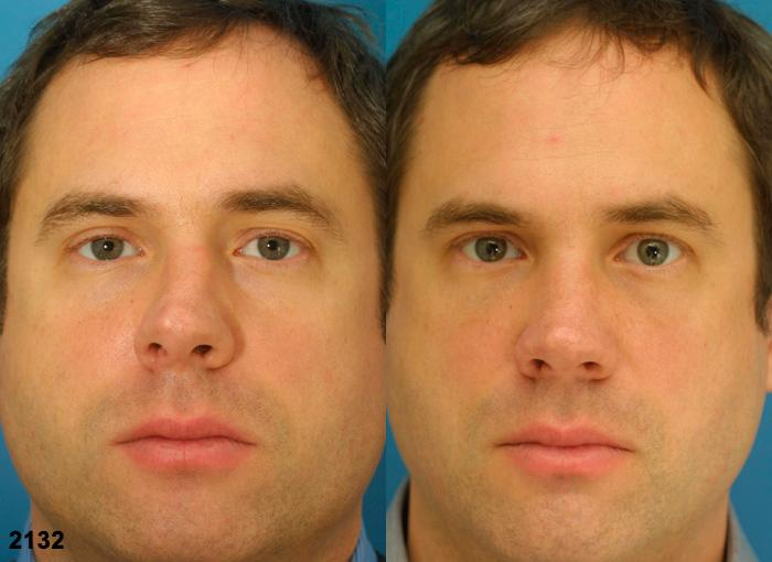 patient-2343-rhinoplasty-before-after