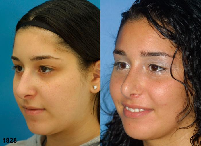 patient-2348-rhinoplasty-before-after-1