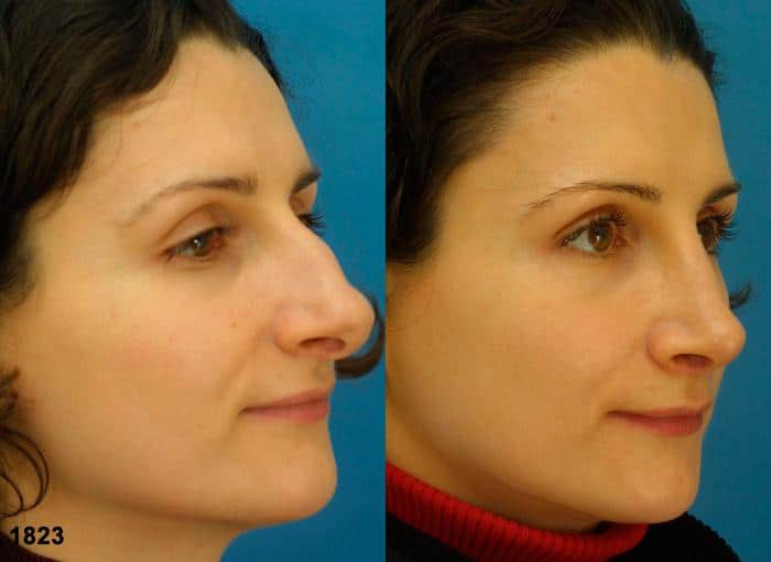 patient-2353-rhinoplasty-before-after