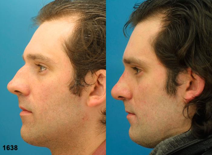 patient-2356-rhinoplasty-before-after-1
