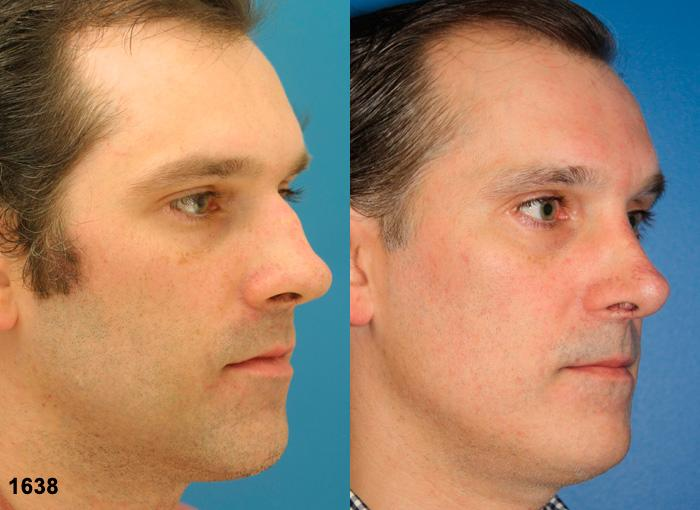 patient-2356-rhinoplasty-before-after