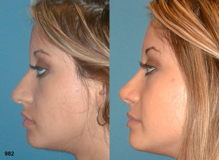 patient-2361-rhinoplasty-before-after-1