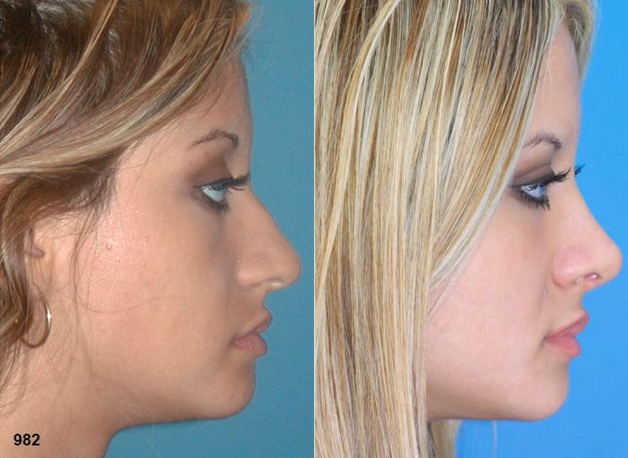 patient-2361-rhinoplasty-before-after