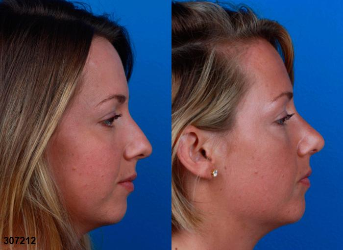 patient-2366-rhinoplasty-before-after