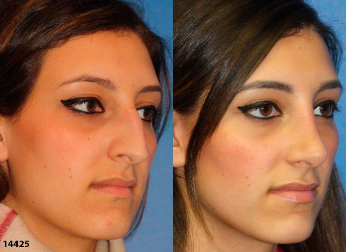 patient-2378-rhinoplasty-before-after
