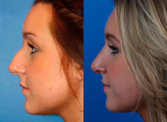 patient-2389-rhinoplasty-before-after-1
