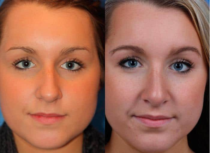 patient-2389-rhinoplasty-before-after