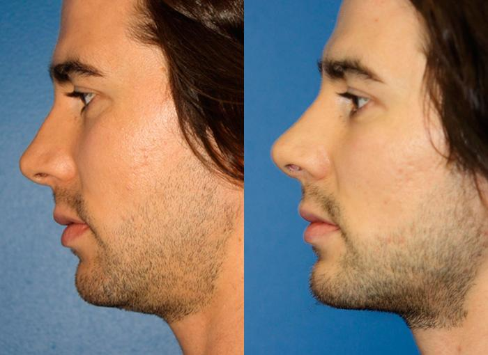 patient-2397-rhinoplasty-before-after