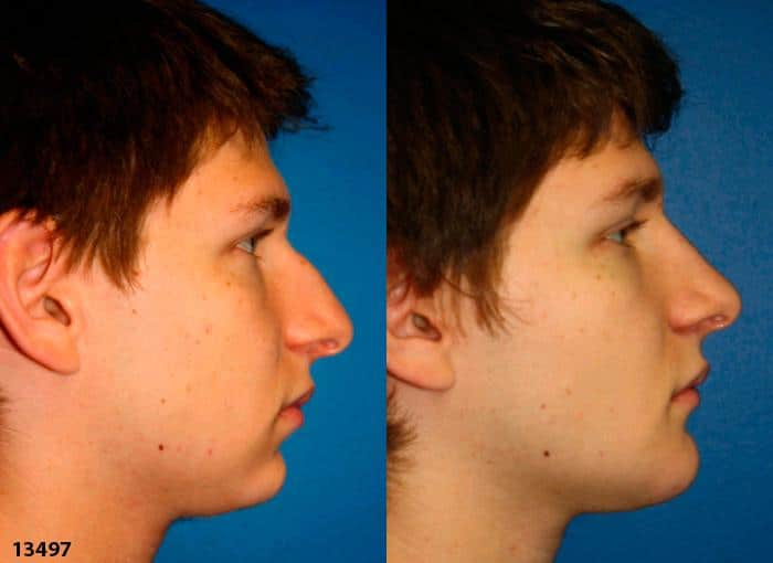 patient-2400-rhinoplasty-before-after-1
