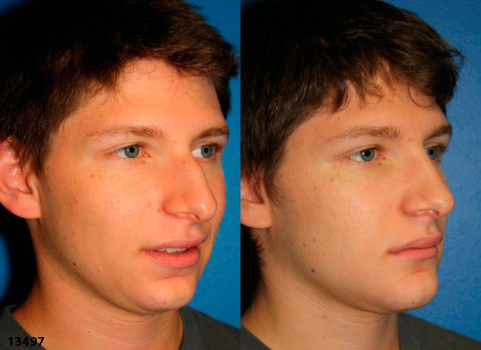 patient-2400-rhinoplasty-before-after