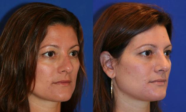 patient-2408-rhinoplasty-before-after