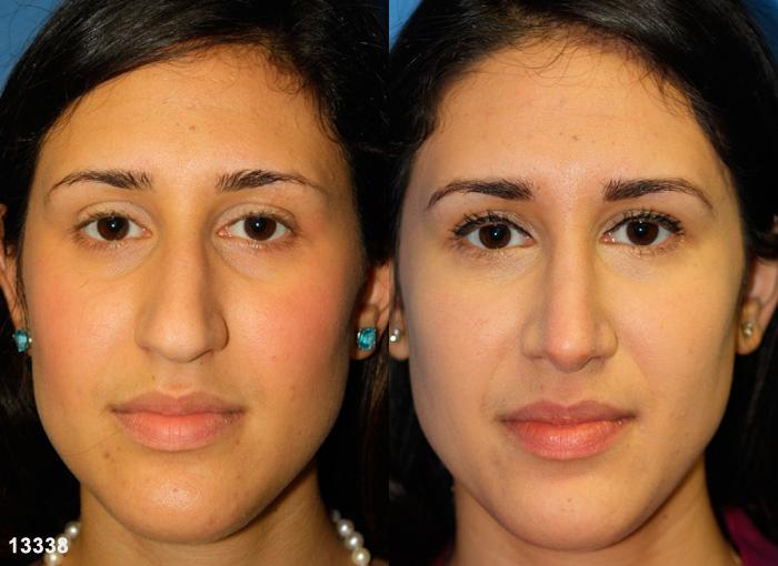 patient-2414-rhinoplasty-before-after