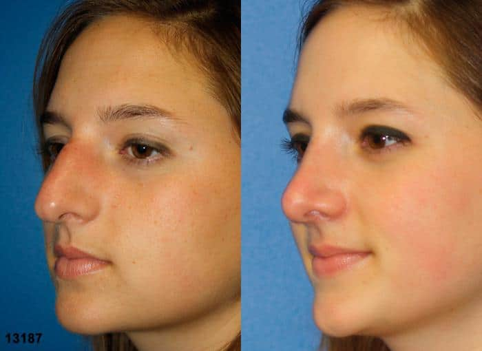 patient-2421-rhinoplasty-before-after-1