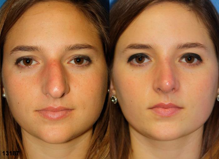 patient-2421-rhinoplasty-before-after