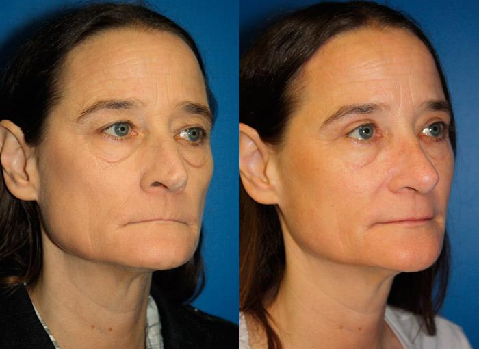 patient-2428-rhinoplasty-before-after-1